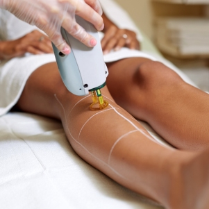 city-girl-vibe-laser-hair-removal-procedure